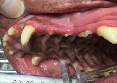 dental procedure